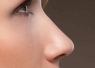 上海自体软骨隆鼻多少钱?自体软骨隆鼻都有哪些优势