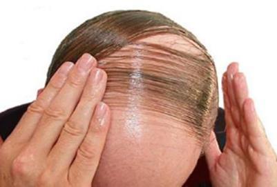 发际线种植手术效果怎么样?多久能长头发?
