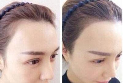 植发手术效果好么 可不可靠?