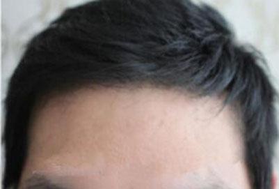 植发际线什么原因 从原理看两种植发技术哪个好