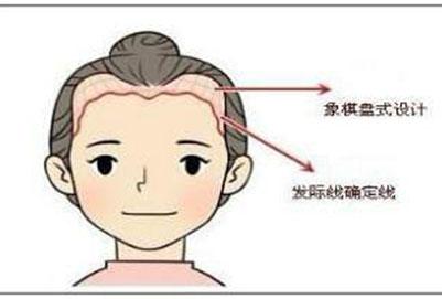 植发原理是什么 一分钟带你了解植发是怎么弄的