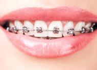 做牙齿整形会痛吗 解析牙齿整形四个阶段疼不疼